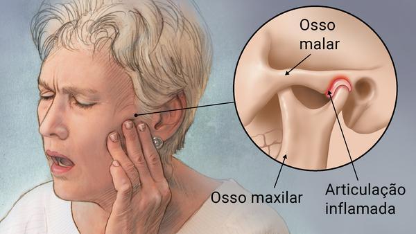 DTM: A Disfunção Nas Articulações Temporomandibulares Pode Chegar A Um Estágio Grave?